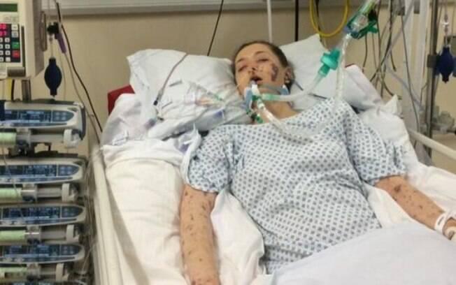 Jovem, que mora nos arredores da cidade de Chesterfield, ficou internada durante um mês, sendo que nove dias em coma
