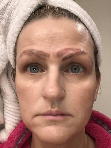 mulher com quatro sobrancelhas