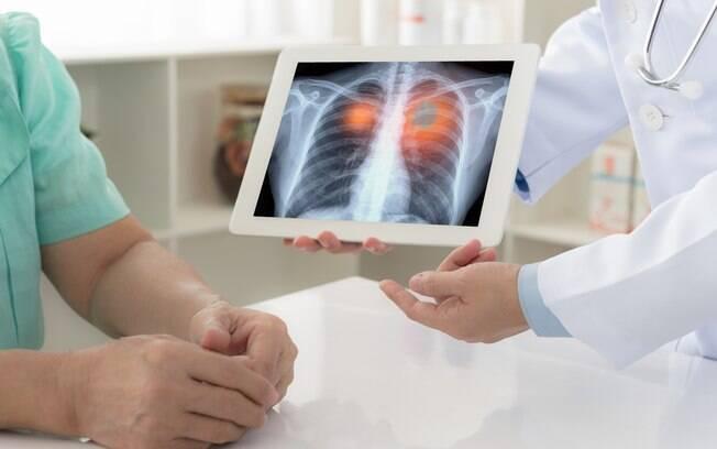 90% dos casos diagnosticados de câncer de pulmão estão ligados ao consumo de derivados de tabaco