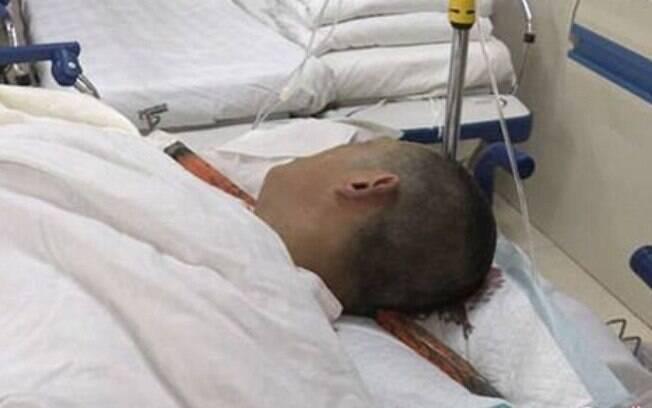 Vergalhão que atravessou a cabeça de Wang Long precisou ser cortado pelos bombeiros para facilitar trabalho de médicos