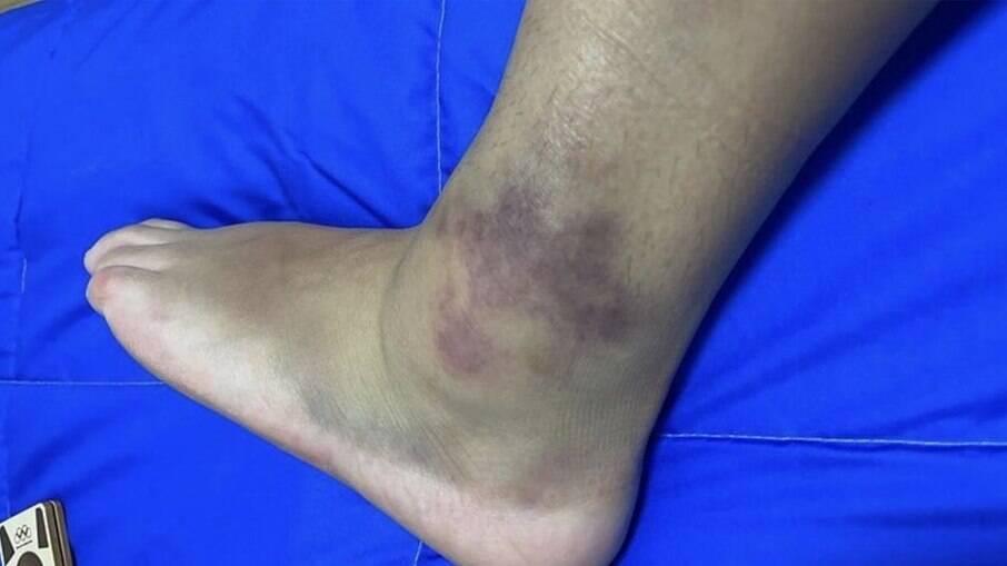 Pâmela Rosa mostra foto do seu tornozelo inchado