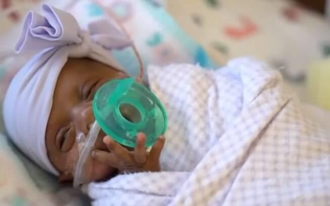 Saybie nasceu de 23 semanas e três dias