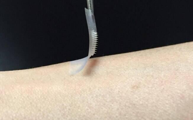 Adesivo que estimula a produção de insulina deverá ser testado em humanos em breve, afirmam os pesquisadores