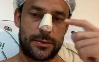 Fred quebra o nariz durante jogo-treino mas segue bem-humorado no Instagram