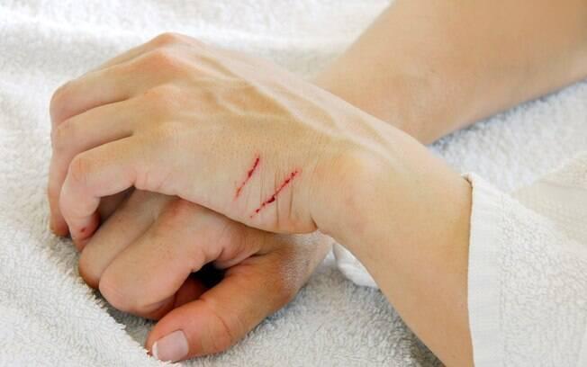O dono pode sair machucado da tentativa de dar remédio para gato