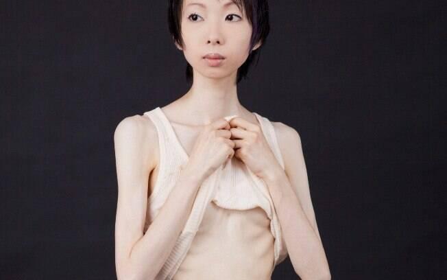 Anorexia é a doença mental que mais mata no mundo