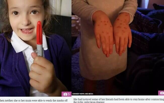 A garota precisou ir à escola com as manchas feita pela caneta permanente, que ficaram sua pele por alguns dias
