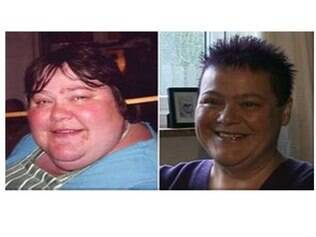 McLean antes de depois de perder peso