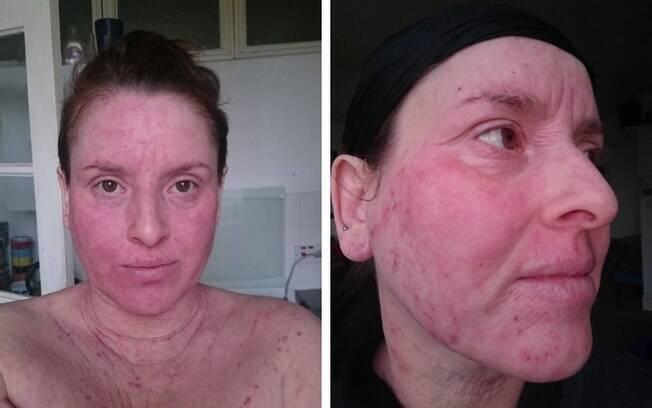Maria Marzaioli chegou ao ponto de raspar o cabelo para ver se a alergia diminuía, mas ela retornou pior que antes