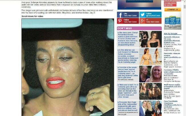 Solange Knowles tem reação alérgica