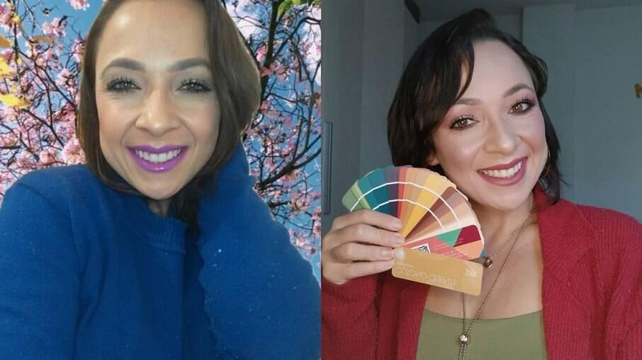 Priscila Machado antes da consulta (esquerda) e depois (direita)