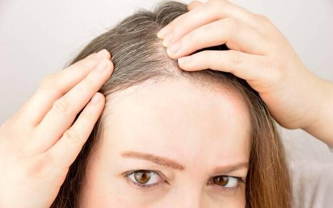 Os primeiros cabelos brancos costumam aparecer aos 30 anos, mas esses fios podem surgir antes por diversas razões