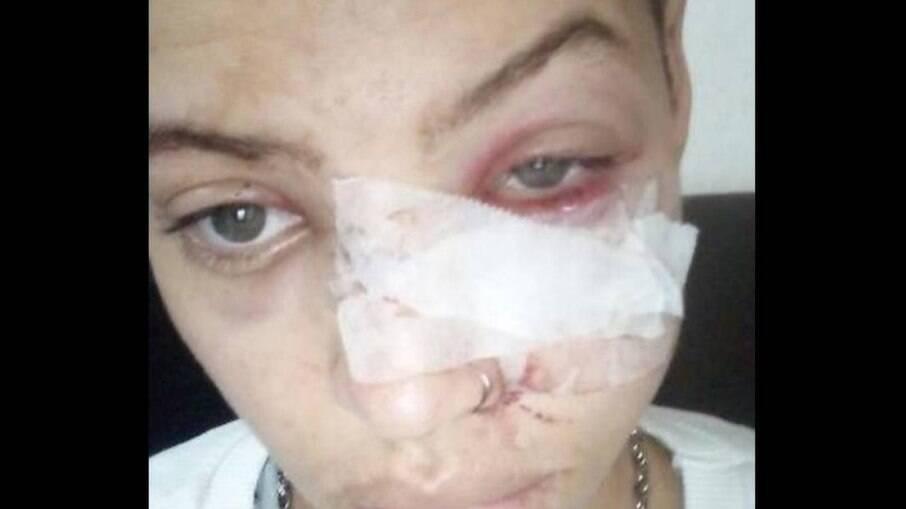 Luan Brandão Neto recebeu golpes de facão no rosto e nas mãos