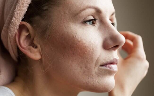 As acne acomete três vezes mais as mulheres na fase adulta do que os homens, de acordo com alguns estudos