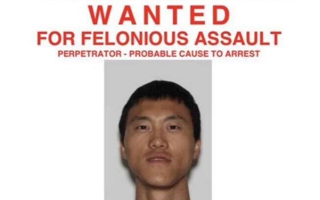 Young Lu estava sendo procurado pela polícia de Nova York após cortar o braço de sua esposa grávida