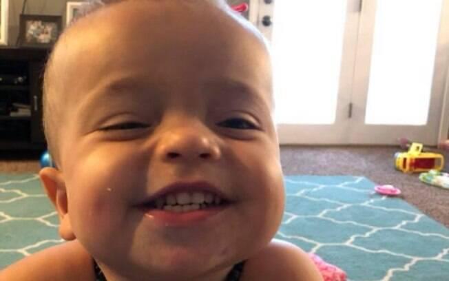 A espinha bífida não é um problema para Roman: na internet, o menino de dois anos sempre aparece dando risada