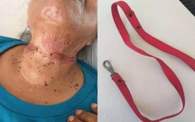 dois frames de mulher com pescoço machucado