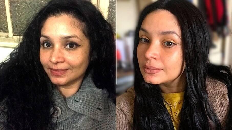 Minha pele após seis semanas de uso dos produtos