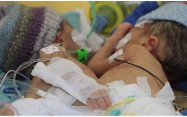 Lydia e Maya antes da separação: uma tinha pressão alta, por ter muito sangue em circulação