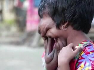 A boca de Khadija é uma abertura ao lado do rosto