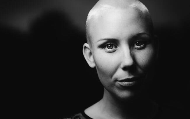 Cuidados com o cabelo após o tratamento de câncer são importantes porque os fios nascem muito fininhos após a terapia
