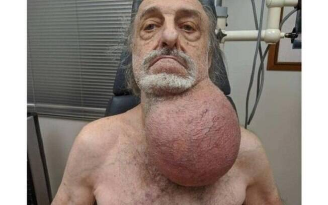 Milton Wingert%2C antes de retirar o tumor