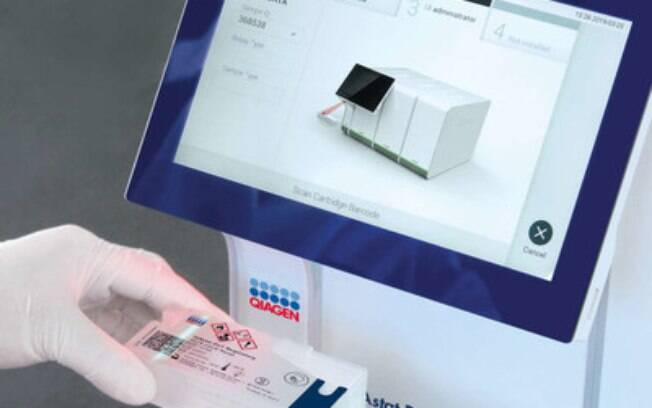 COVID-19 em gestantes: Nova ferramenta laboratorial pode ajudar na detecção precoce do vírus e diminuir o tempo das pacientes no hospital