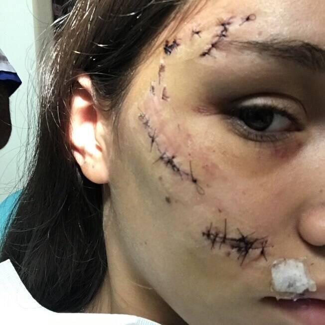 Rosto de Lara após ataque
