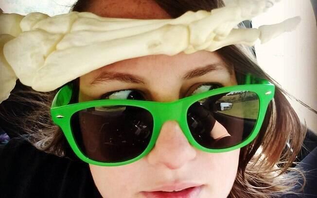 Sobrevivente de câncer, Kristi Loyall teve que amputar seu pé, e então decidiu criar uma conta no Instagram para ele