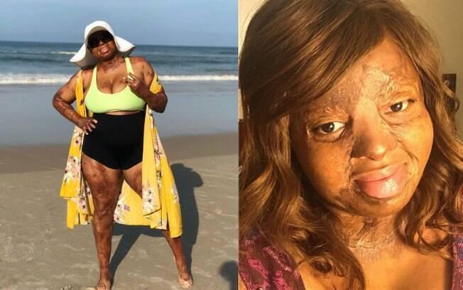 Kechi Okwuchi exibe suas cicatrizes em seu perfil do Instagram; ela fala que outras pessoas a ajudaram a seguir em frente