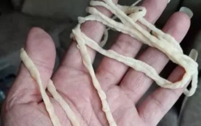 Tênia na mão de pessoa