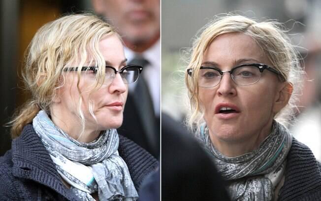 Nem a Madonna está livre do frizz. Mas tem solução (e nem é difícil...)