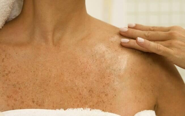 Autoexaminar periodicamente as pintas e manchas da pele e consultar um médico em caso de anormalidade é fundamental para evitar o câncer de pele