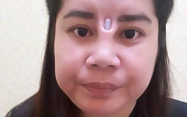 A rinoplastia desta tailandesa também teve complicações, e o implante de silicone rompeu o seu rosto