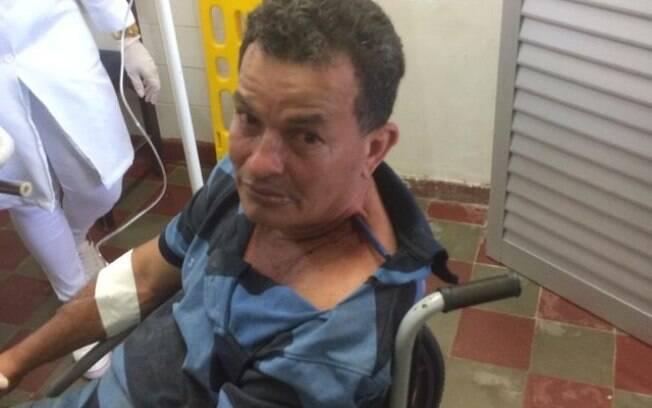 Homem levou facada no pescoço, mas sobreviveu com objeto preso nele