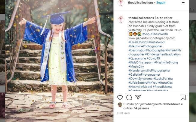 A mãe é fotógrafa profissional e tem um projeto que registra momentos de crianças especiais.