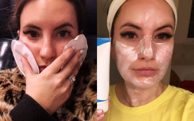 Após o procedimento estético com laser deixar marcas no rosto de Heather, ela procurou ajuda de uma dermatologista