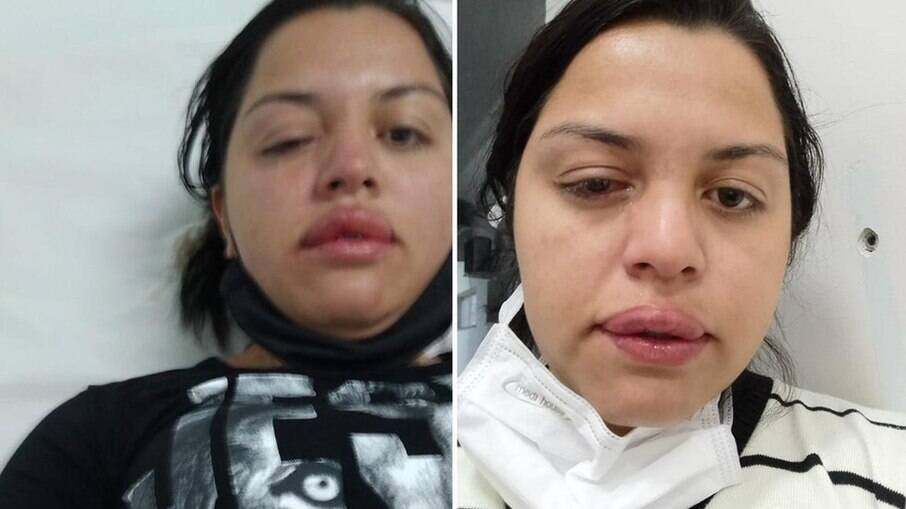 Faxineira atacada com ácido por ex-patrão, em Catanduva (SP)
