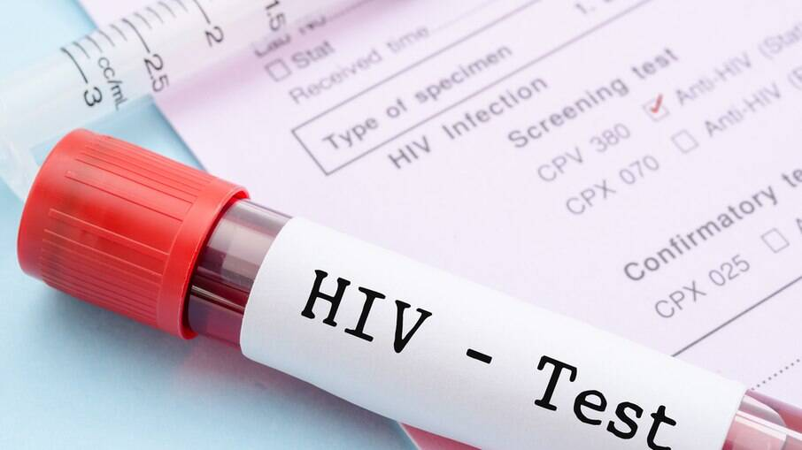 Vacina contra o HIV apresenta baixa eficácia e estudo é encerrado