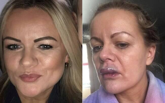 Mulher faz preenchimento labial, mas como resultado fica com a boca inchada e cheia de pus