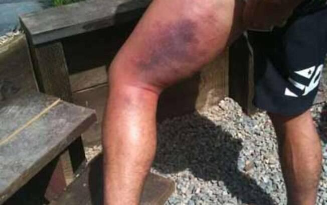 Após ser derrotado pelo brasileiro, Faber  exibiu na internet a imagem de sua perna que  chocaram todos os fãs...