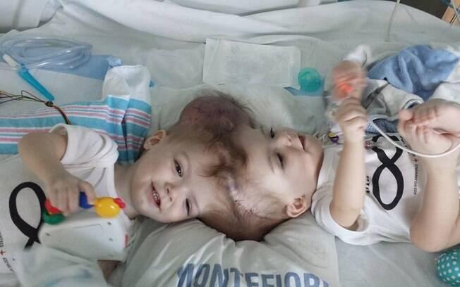 Anias e Jadon McDonals eram unidos pela parte de cima da cabeça e corriam sérios riscos de complicações médicas