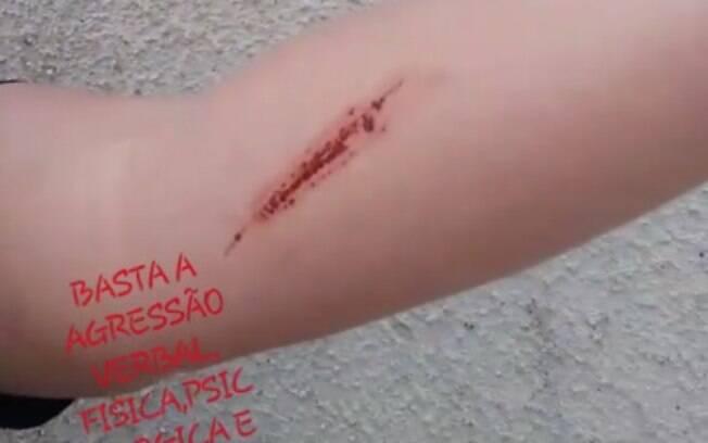 Ana Paula Almeida mostra os machucados