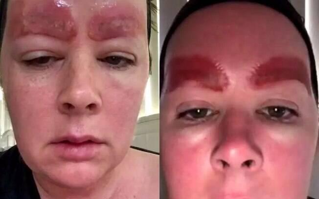 Segundo dermatologista, é provável que esta mulher teve uma reação à tinta usada em procedimento de sobrancelhas