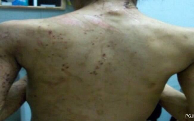 Marcas da violência sofrida pela jovem: queimaduras com ferro de passar eram frequentes