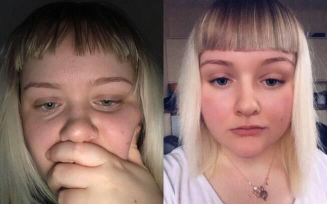 O namorado de Amy usou um barbeador elétrico para cortar cabelo, mas ela só percebeu o erro após se olhar no espelho