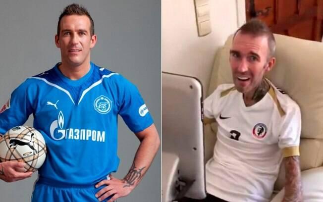 O ex-jogador Fernando Ricksen antes e depois da doença