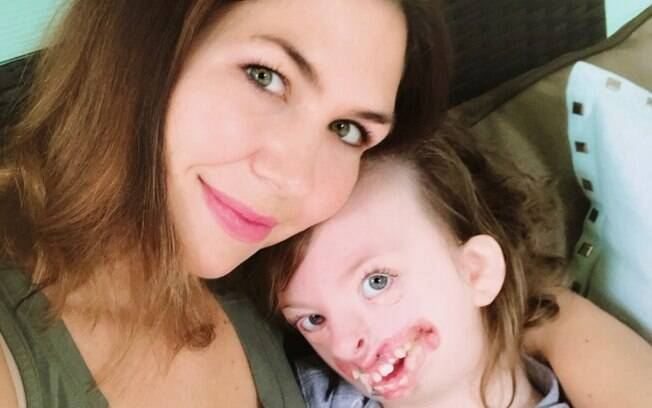 Natalie Weaver resolveu agir após ver a imagem da filha com síndrome rara ser associado ao aborto em uma postagem