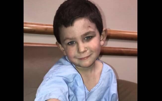 Noah Woods, de apenas 5 anos, manteve a clama para salvar família de incêndio