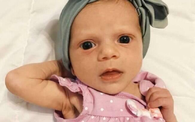 Com duas semanas de vida, a recém-nascida pesava 2,5kg - meio quilo a menos do que pesava quando nasceu